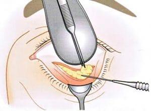 удаление грыжи глазной операция