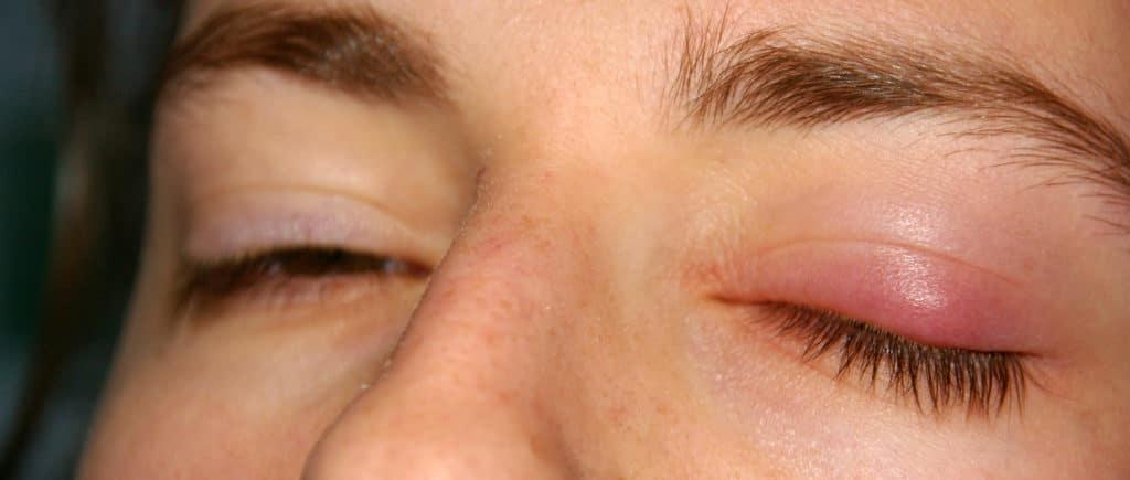 фото халязиона глаза