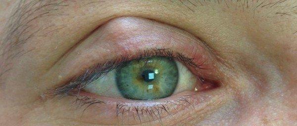фото халязиона на глазу