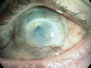 глаз с химическим ожогом