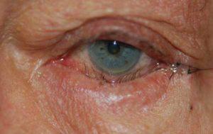 фото кератопатии глаза