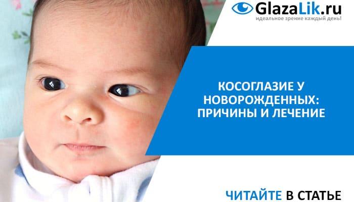 страбизм у новорожденных