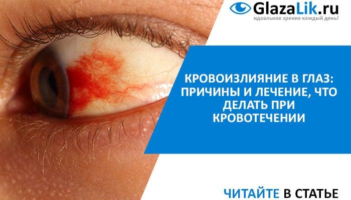 кровоподтек в глазу