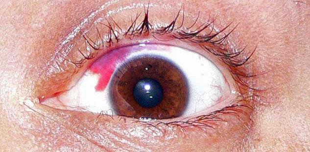 фото крови на белке глаза