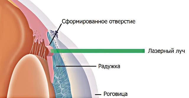 схема лазерной иридэктомии