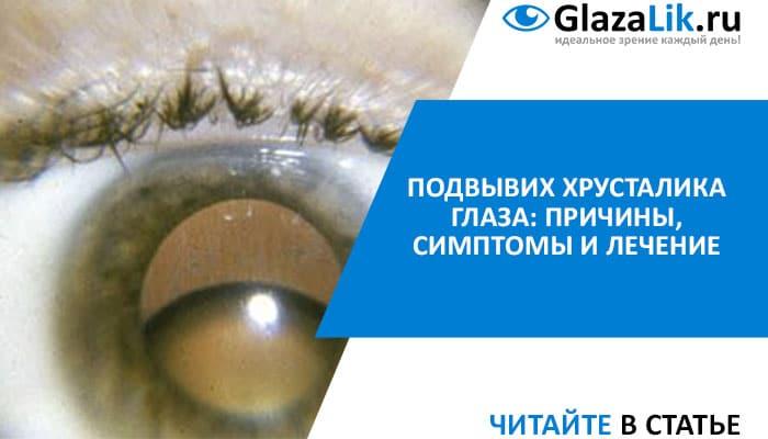 подвывих хрусталика глаза