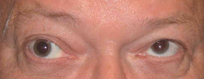 фото офтальмоплегии