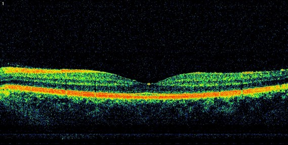 ОКТ сетчатки глаза: что это такое и для чего необходимо