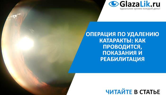 хирургическое удаление катаракты
