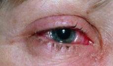 фото глаза с ожогом от сварки