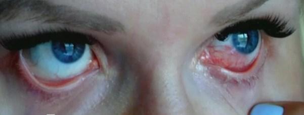ожог глаз после наращивания ресниц