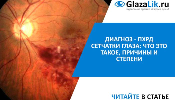 пхрд сетчатки глаза лечение