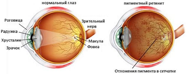 нормальный глаз и пигментный ретинит
