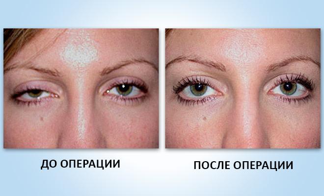 до и после операции по птозу