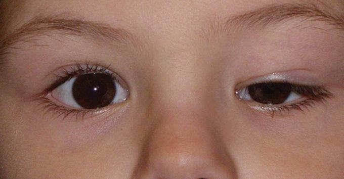 фото птоза у ребенка