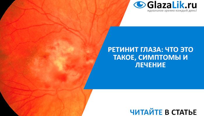 лечение ретинита
