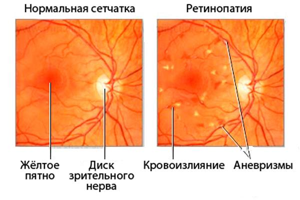 сетчатка при ретинопатии