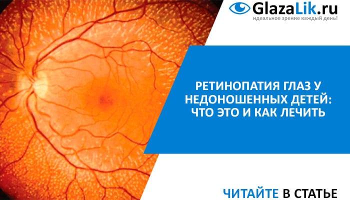лечение ретинопатии глаз у недоношенных
