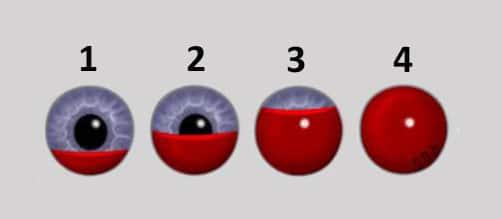 стадии заполнения кровью глаза при гифеме