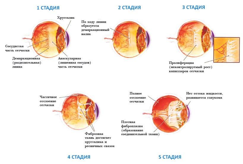 степени ретинопатии недоношенных