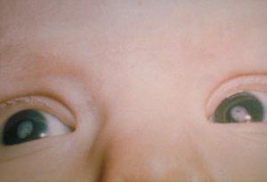 катаракта у новорожденного