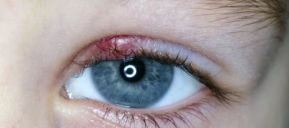 Глазная мазь ацикловир отзывы
