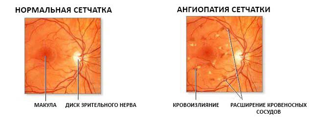 ангиопатия сетчатка и здоровый глаз